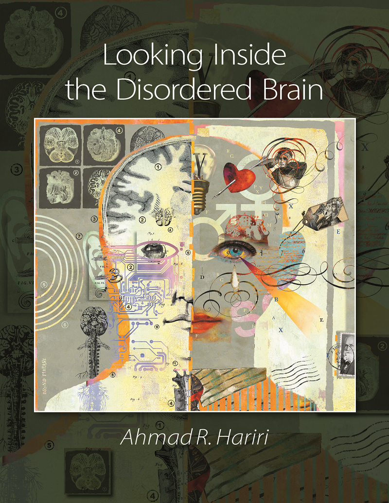 Looking Inside the Disordered Brain Instructor Resources